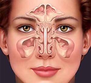 Киста в носу - описание и характеристика патологии
