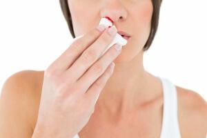 Частые кровотечения из носа у взрослых и детей