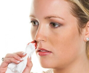 Как быстро остановить кровь из носа