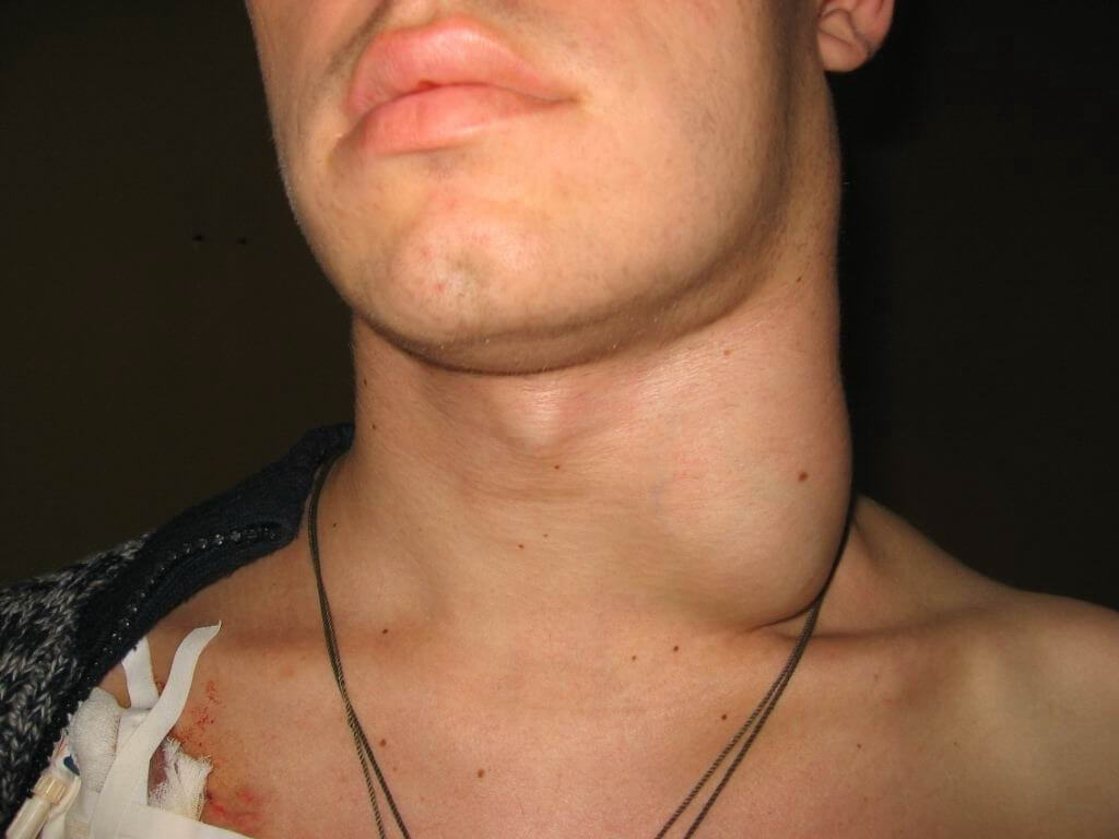 ассортимента Термолайн увеличение лимфоузлов при цитомегаловирусе вид одежды
