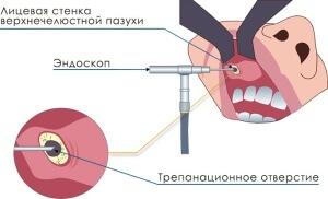 Эндоскопическое лечение кистозного гайморита