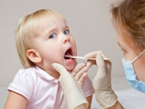 Чаще всего Люголь спрей назначается для лечения заболеваний полости рта и горла у детей