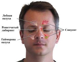 Синусит – это воспаление всех придаточных пазух носа.