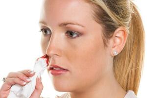 Если кровотечение из носа сопровождается дополнительными тревожными симптомами нужно вызвать скорую помощь!