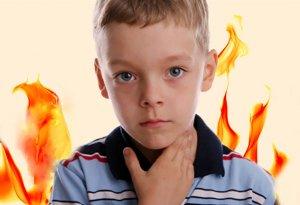 Советы родителям: как и чем лечить ангину у детей