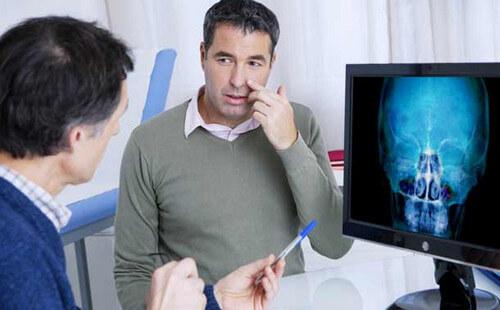 О чем может «рассказать» рентген носовых пазух?