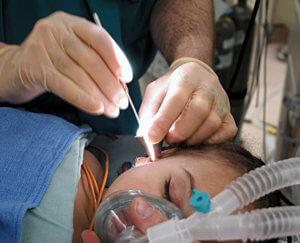 Тимпанопластика – операция по восстановлению барабанной перепонки