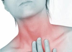 Фарингит – воспаление слизистой оболочки глотки