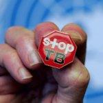 Туберкулез – опасная заразная болезнь