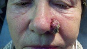 Нарост на носу начал меняться – нужно срочно обратиться к врачу!