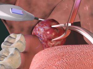 Процедура удаления миндалин лазером