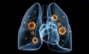 Целый ряд причин может спровоцировать развитие болезней легких