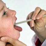 Скарлатина сопровождается болью в горле и точечной сыпью по всему телу