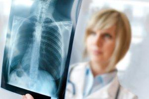 Рентген – эффективный и популярный метод обследования состояния легких