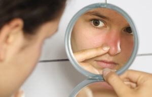 Покраснение и боли в носу могут указывать на фурункулез
