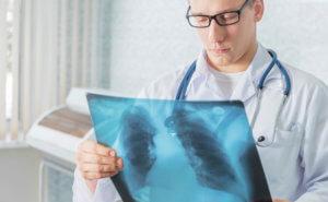 Делаем рентген и ищем причину симптома