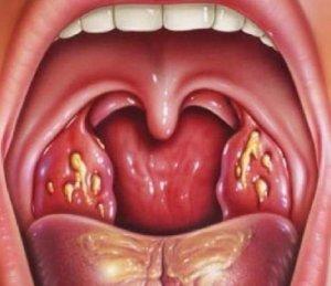 Чаще всего причиной недуга является бактериальная инфекция
