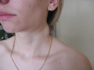 Невылеченный лимфаденит может привести к ряду осложнений