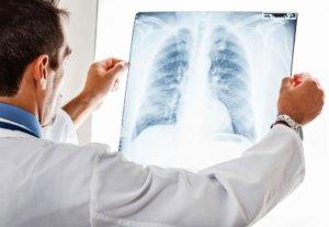 Важное значение в диагностике недуга имеет рентген