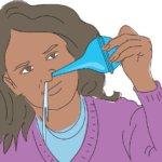 Промывание носа и носоглотки применяют для лечения ОРВИ и ЛОР-заболеваний