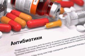 Антибиотики назначают при бактериальной инфекции