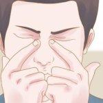 Длительный насморк может стать причиной гайморита