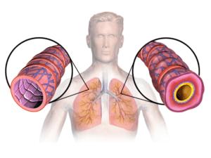 Бронхиальная астма может быть аллергического, неаллергического и смешанного происхождения