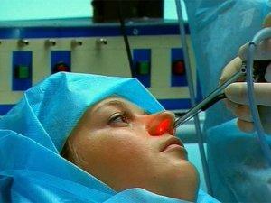 Лазерная вазотомия – малотравматиный, популярный и эффективный метод лечения