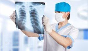 Подтвердить диагноз можно с помощью рентгена грудной клетки