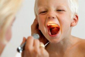 Как проявляется и лечится вирусная ангина у детей?