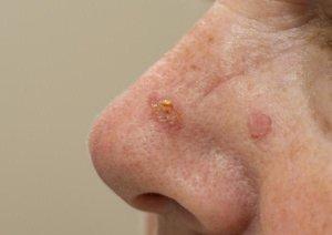Базилома на носу – это злокачественная опухоль