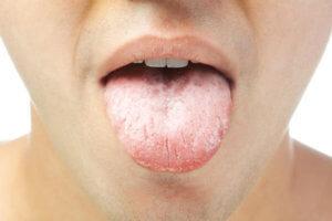 Покраснение, отек, сухость и белый налет – признаки инфекции