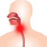 Ларингит – это воспаление слизистой оболочки гортани