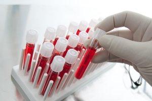 Диагностировать рак можно по результатам анализа крови на онкомаркеры