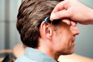 Слуховые аппараты для коррекции слуха