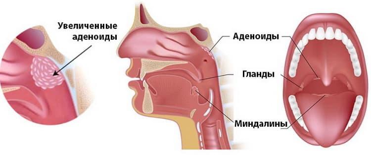 Увеличенные аденоиды