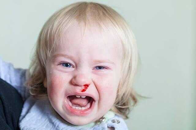 Почему у детей идет кровь из носа, общие и местные причины явления