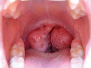 Симптоматика и причины заражения