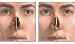 Врожденные и приобретенные причины искривления носовой перегородки