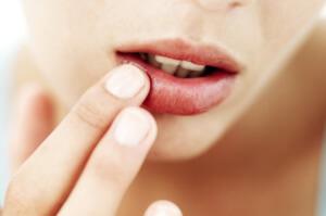 Ацикловир - назначение препарата