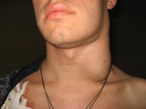 Основные симптомы при воспалении лимфатических узлов