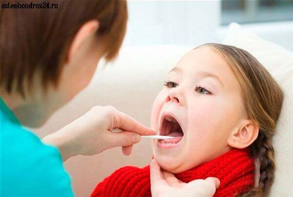 Признаки фолликулярной ангины у детей и методика лечения недуга
