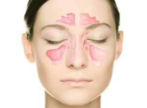 Препарат Синуфорте назначается для лечения воспалительных заболеваний придаточных пазух и полости носа