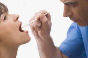 Гнойные пробки в горле – распространенный признак гнойной ангины