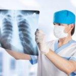Чаще всего причиной пневмонии является бактериальная инфекция