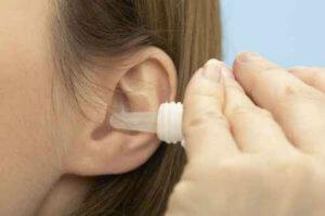 Серная пробка – это закупорка слухового прохода массой, которая состоит из уплотненной ушной серы и частичек эпидермиса