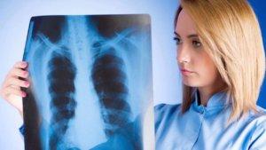 Рентген – распространенная и эффективная диагностика воспаления легких