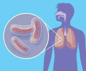 Запущенный туберкулез – угроза для жизни!