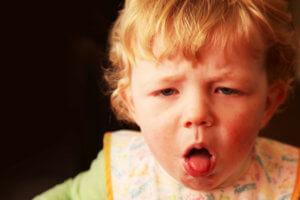 Сильный лающий кашель у ребенка может быть признаком коклюша