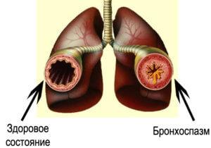 Бронхоспазм возникает как осложнение других болезней дыхательной системы